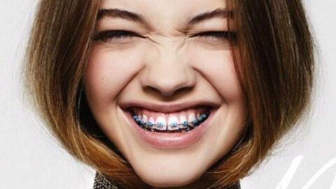 Σιδεράκια και χαμόγελο