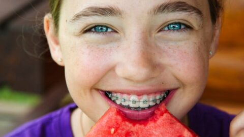 Τι μπορείτε να τρώτε όταν φοράτε σιδεράκια